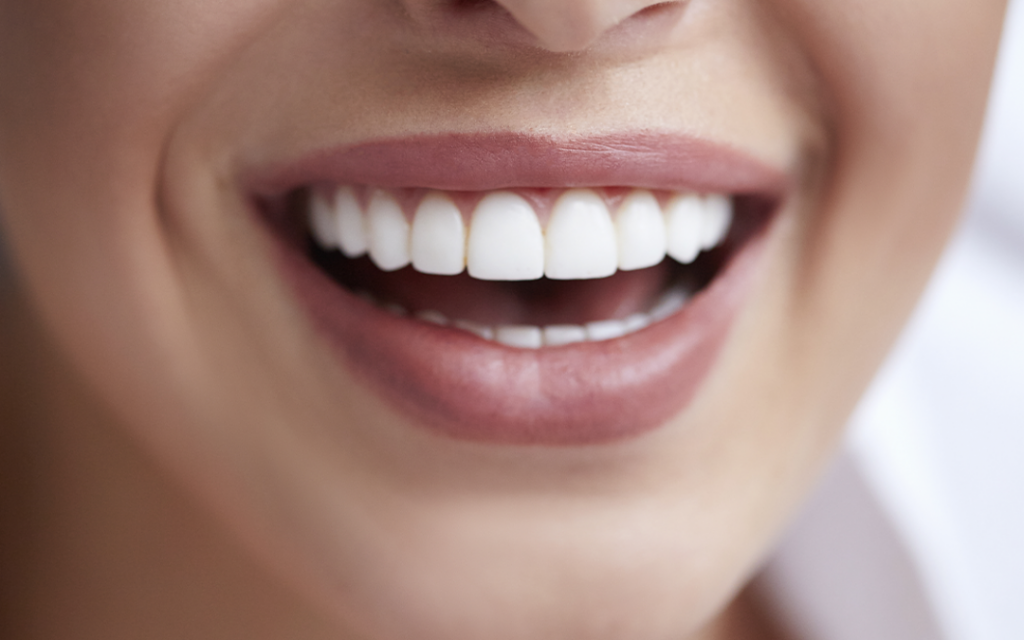 Is It Possible to Get Veneers Under the NHS?